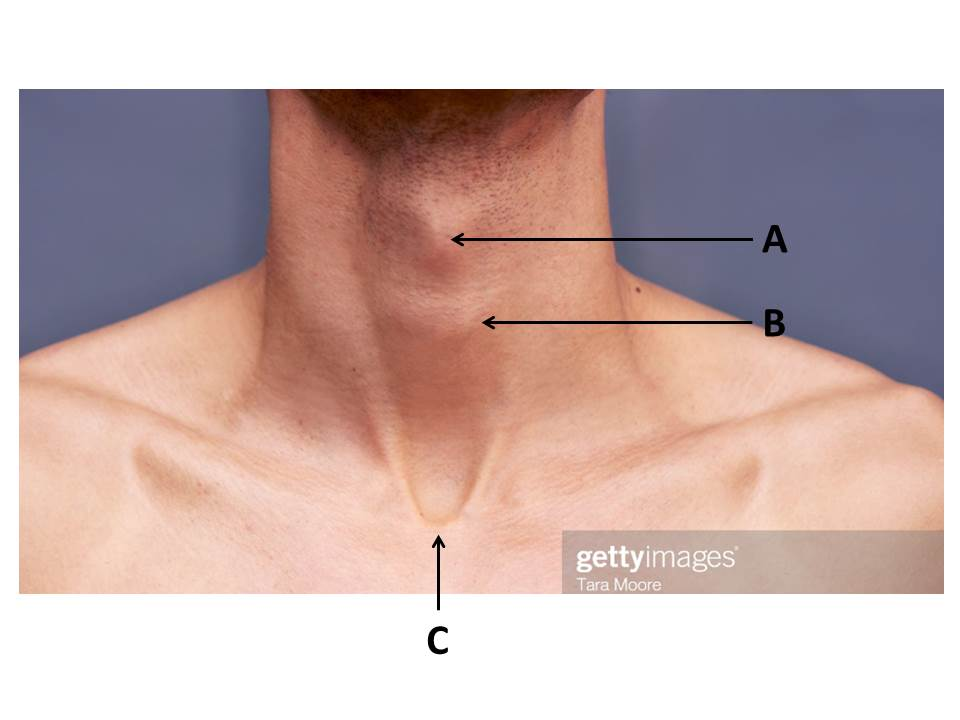 Airway Anatomy Primary Lo Of The Day